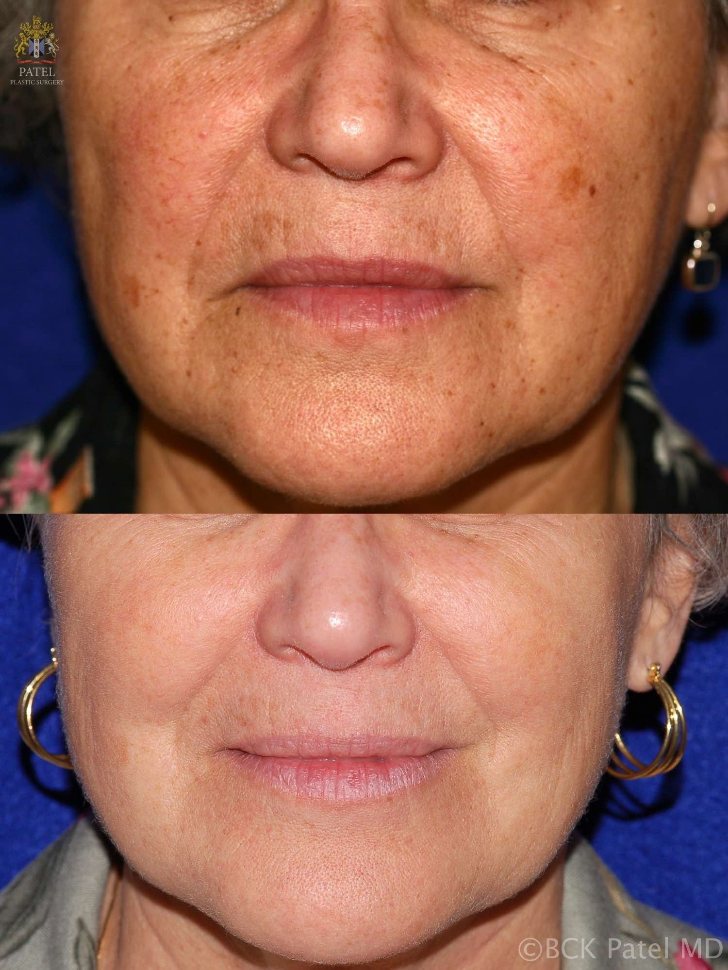 englishsurgeon.com Results of facial fotofacial treatments by Dr. BCK Patel MD, FRCS, Salt Lake City, St George