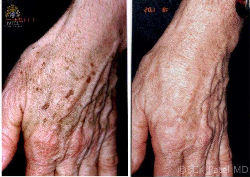 englishsurgeon.com Results of fotofacial laser treatments to the hands.