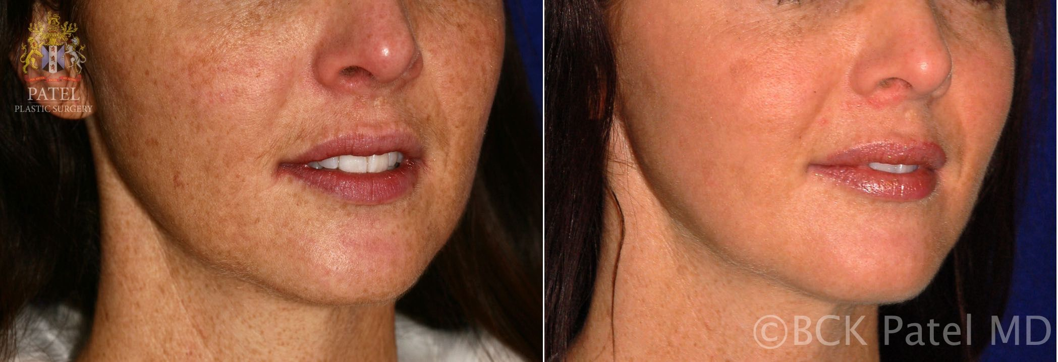 englishsurgeon.com. Photos show before-and-after of advanced fotofacial laser treatments. BCK Patel MD, FRCS