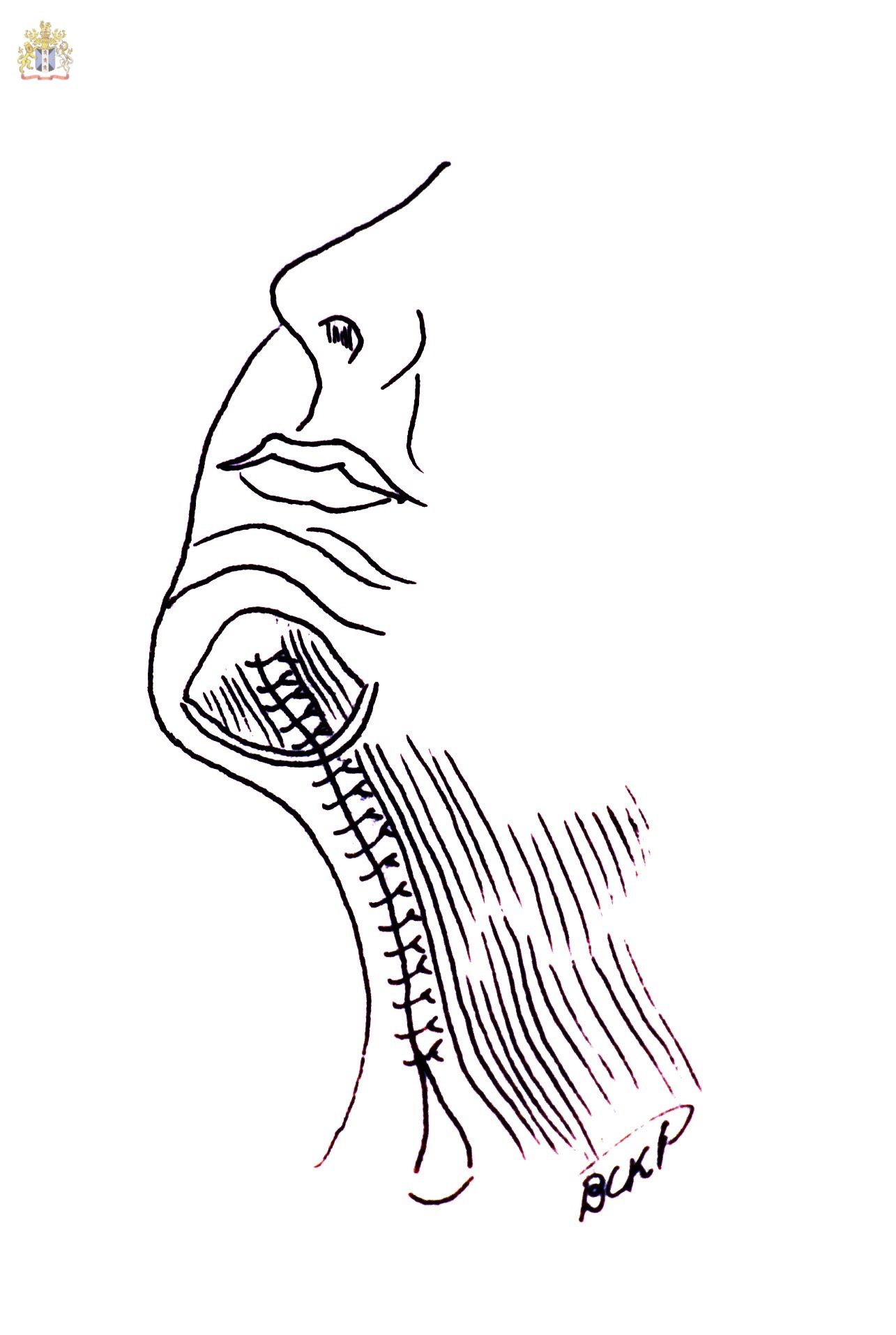 englishsurgeon.com Drawing shows how the platysma may be sutures to improve neckbands. BCK patel MD, FRCS, Salt Lake city
