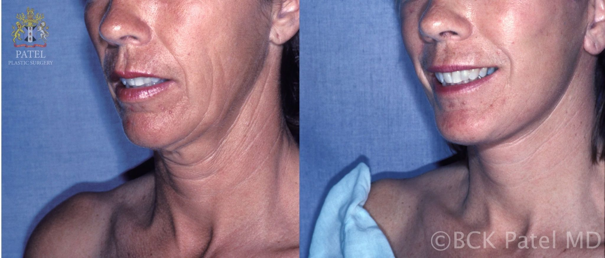 englishsurgeon.com The gold standard for necklifts is a proper facelift which these photos illustrate. BCK patel Md, FRCS, Salt Lake City