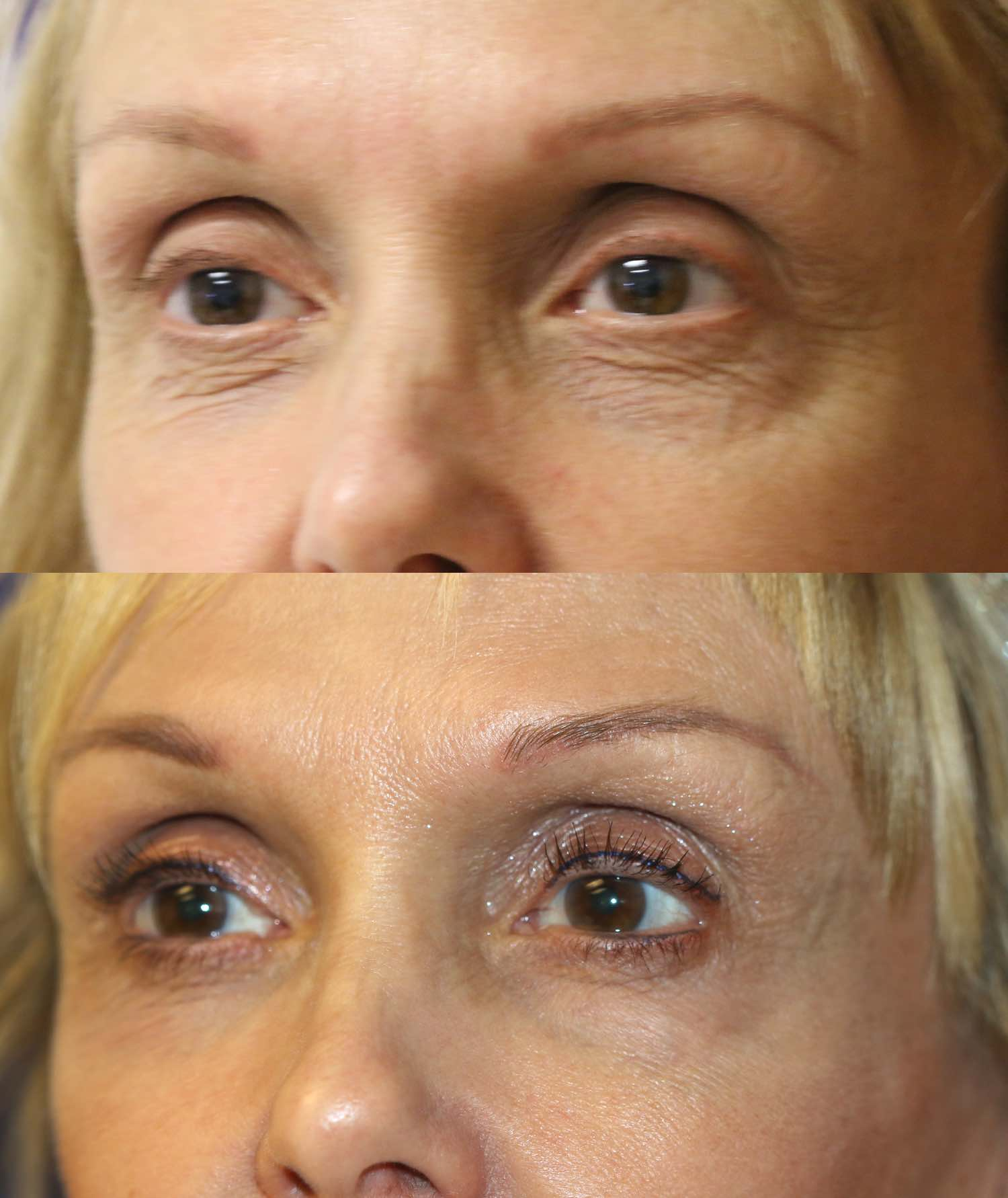 englishsurgeon.com. Photos show the improvement that can be achieved in lower eyelid wrinkles and hollows with fillers and lasers