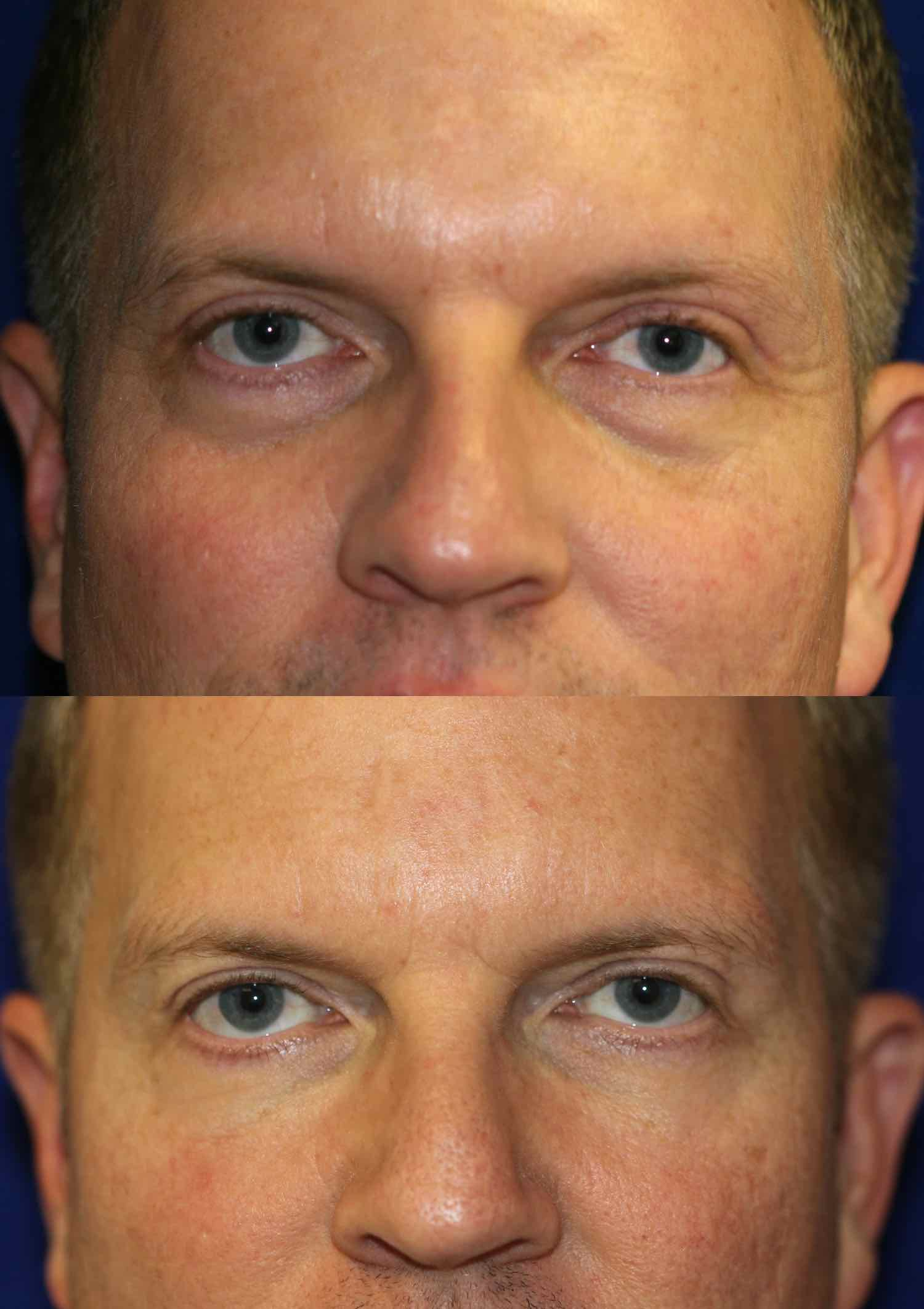 englishsurgeon.com. Photos showing improvement of the nasojugal and malar grooves of the lower eyelids with fillers