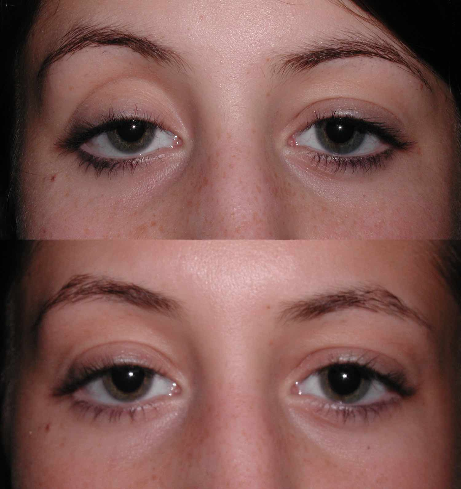 englishsurgeon.com. Photos showing correction of deep upper eyelid sulci with restylane