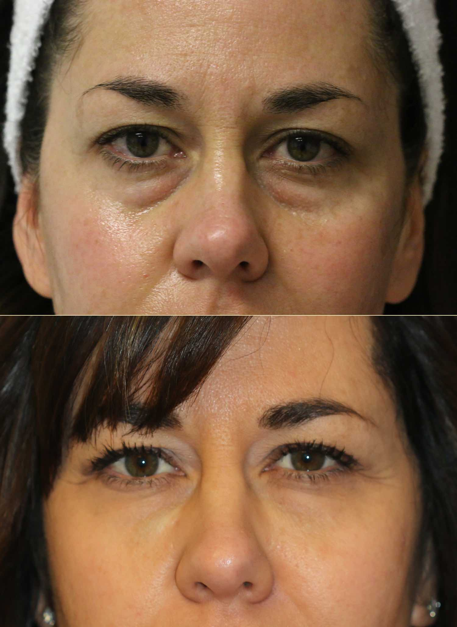 englishsurgeon.com. Photos show the improvement in the lower eyelid grooves