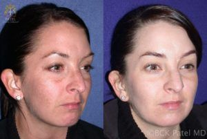 englishsurgeon.com. Chemical peel treatment results for melasma by Dr. BCK Patel MD, FRCS, Salt Lake City, St George, London