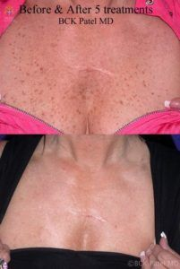 englishsurgeon.com. Photos showing improvment in the neck and chest sun-related changes
