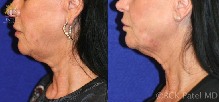 Results of Accent radiofrequency treatments to the face. BCK Patel Md