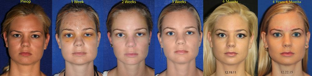 englishsurgeon.com. BCK Patel MD, Patel Plastic Surgery. Browlift of patient over time