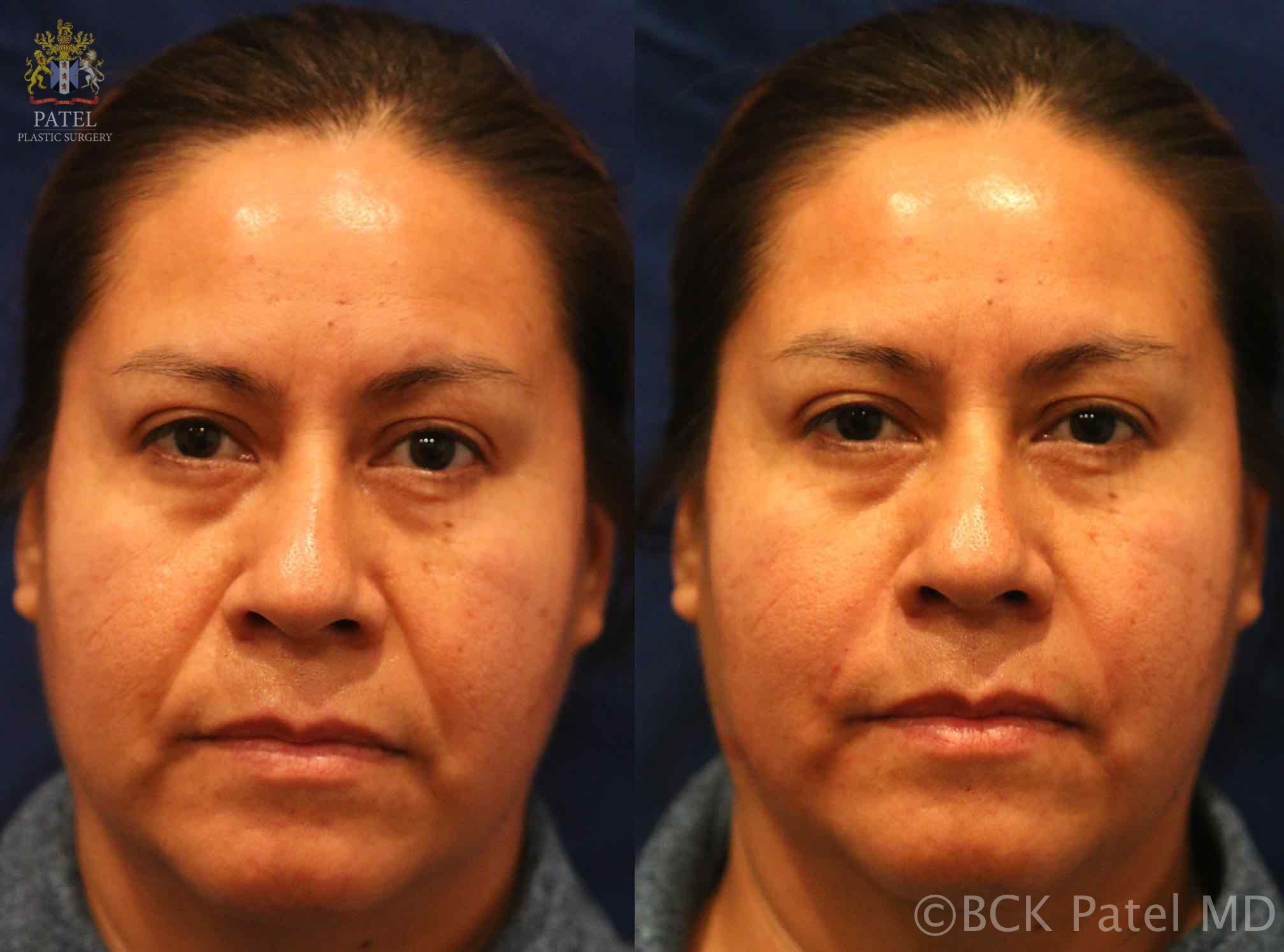 englishsurgeon.com. Photos of improvement in cheeks and nasolabial folds with fillers