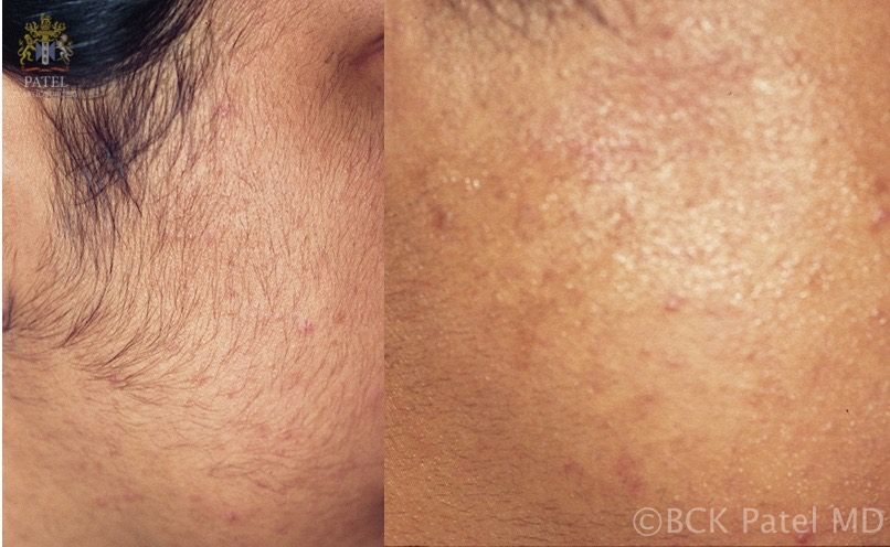 Illustrates before-and-after photos of laser hair removal by BCK Patel MD, FRCS