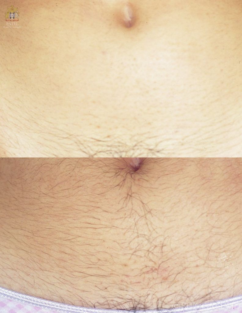 Laser hair removal from the abdomen by Dr. BCK Patel MD., Salt Lake City