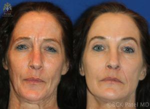 englishsurgeon.com. Photos showing improvement with botox injections. BCK Patel MD