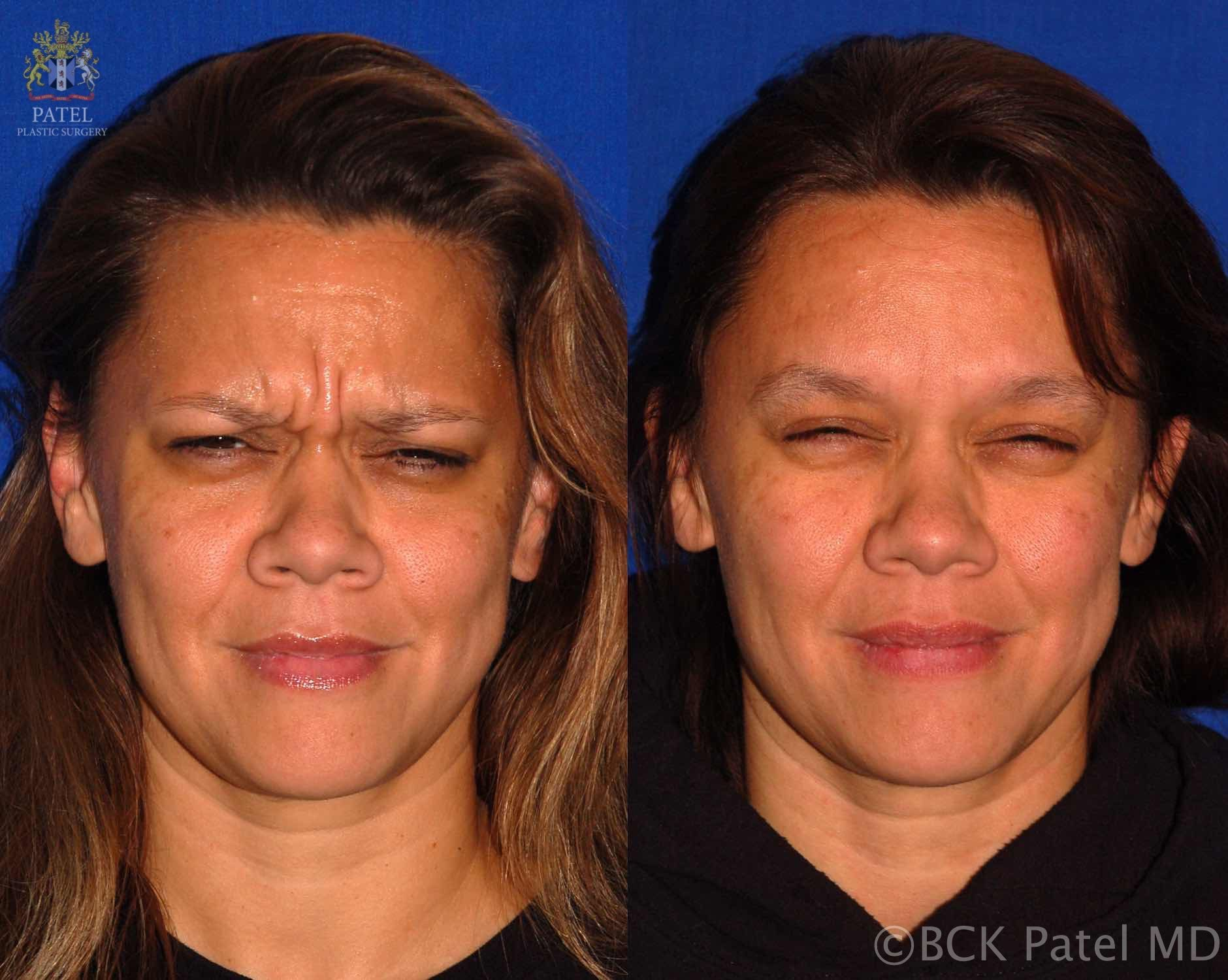 englishsurgeon.com. Photos showing the results of botox injections