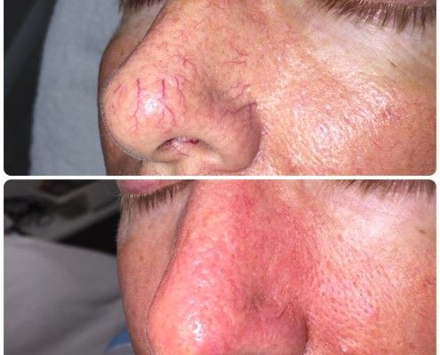 Nose vein treatment with laser. Bhupendra C K Patel MD, FRCS; englishsurgeon.com. BCK Patel MD, Patel Plastic Surgery.