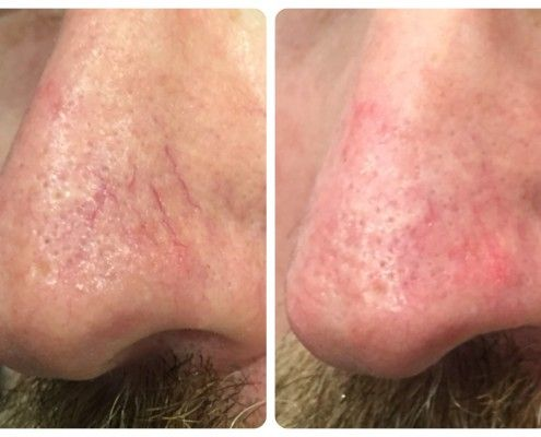 Improve Acne Rosacea And Broken Capillaries And Vessels On