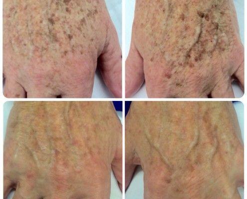 Hand laser treatments. Bhupendra C K Patel MD, FRCS; englishsurgeon.com. BCK Patel MD, Patel Plastic Surgery.