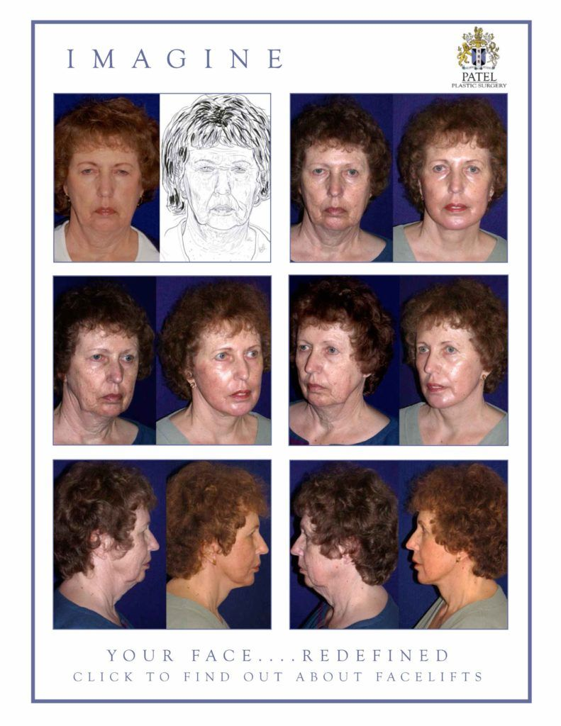 englishsurgeon.com Results of a facelift with fat grafts and the use of the CO2 laser on the face by Dr. BCK Patel MD, FRCS, Salt Lake city, Utah