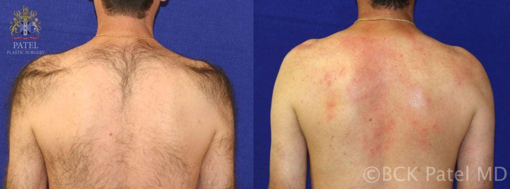 Laser hair removal back before and after photos by Dr. BCK Patel MD, FRCS, Salt Lake City, St. George