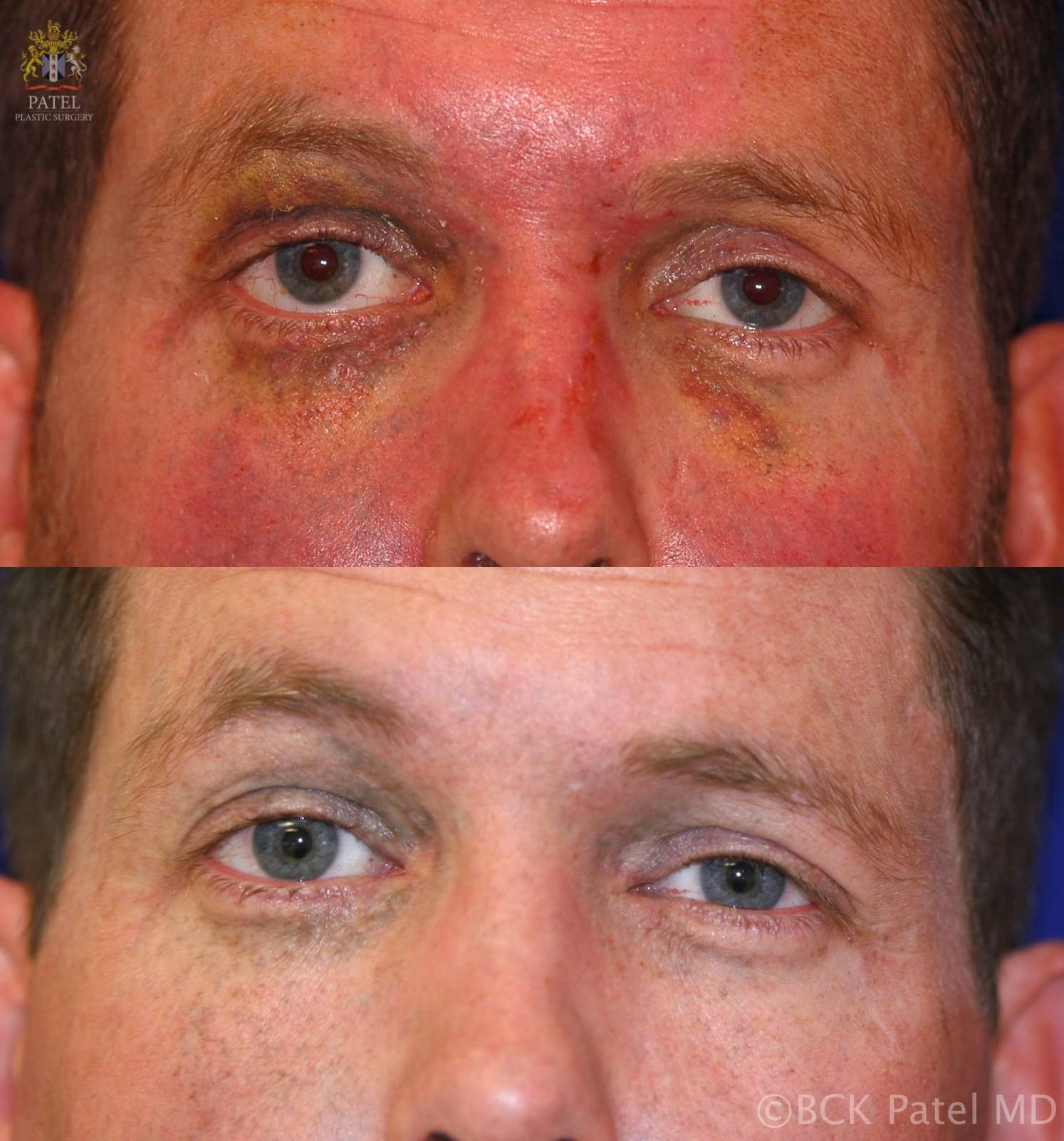 englishsurgeon.com. Photos showing the improvemnt in traumatic tattoos on the face and eyelids. Treated with lasers. BCK Patel MD, FRCS, Salt Lake City, Utah, St. George