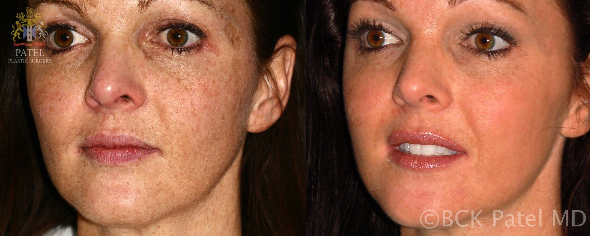 englishsurgeon.com Results of face fotofacial treatments by Dr. BCK Patel MD, FRCS, Salt Lake City, St George