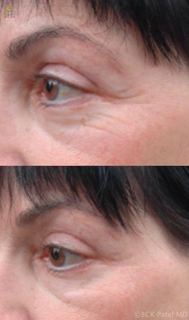 Results of Accent radiofrequency treatments to the crow's feet. BCK Patel Md