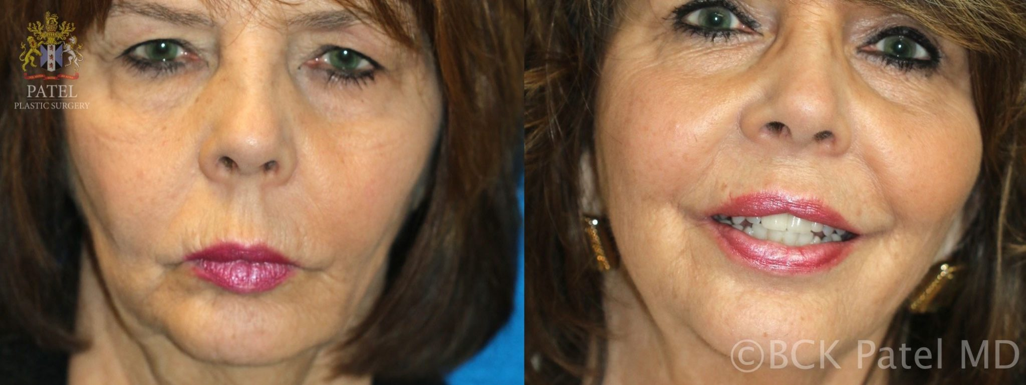 englishsurgeon.com. Photos show improvement in the upper lip length and lines as well as fullness by Dr. BCK Patel MD, FRCS, Salt Lake City, St George