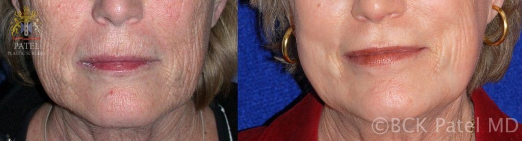 englishsurgeon.com. Photos showing the improvement of lines around the lips and on the face