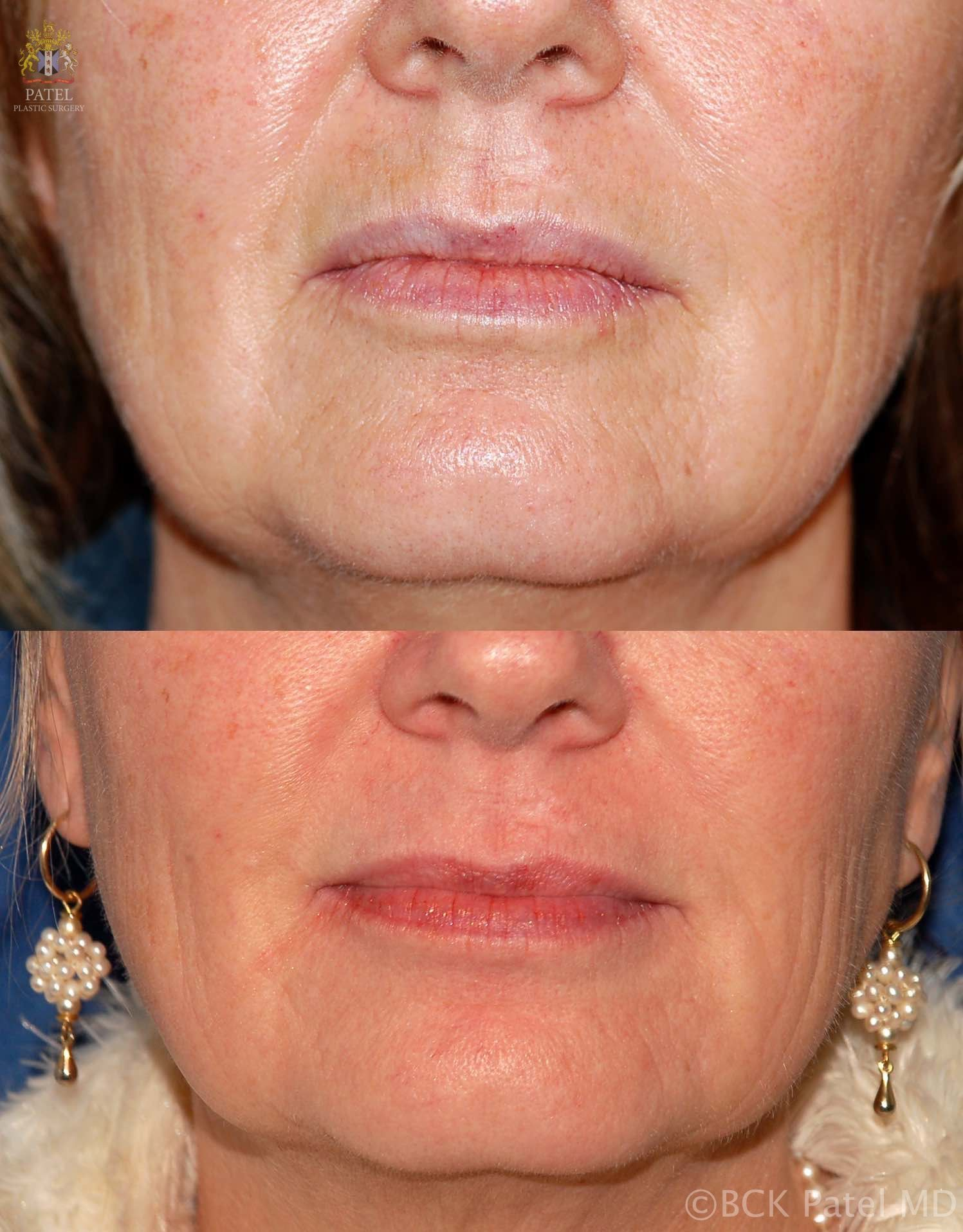 englishsurgeon.com. Photos show the results of using the CO2 fractionated laser for lip lines and skin texture