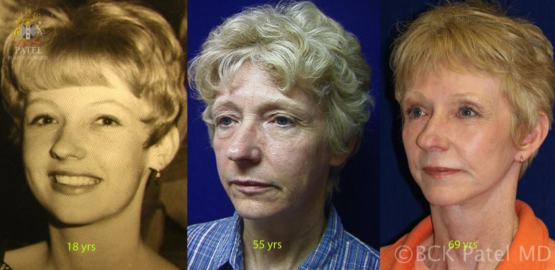 englishsurgeon.com. Photos showing the long-term results of the Patel Hammock lift together with browlifts, upper and lower blepharoplasty and skin grafts