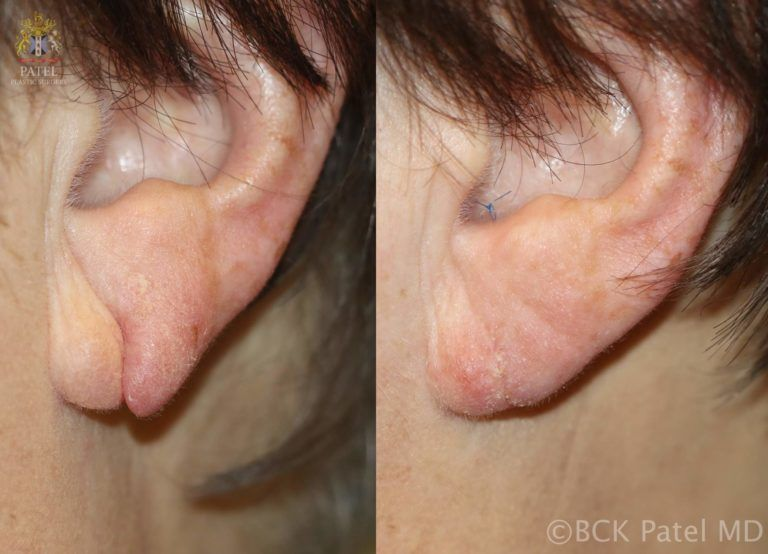 englishsurgeon.com Split earlobe repair by Dr. BCK Patel MD, FRCS, Salt Lake City, St. George
