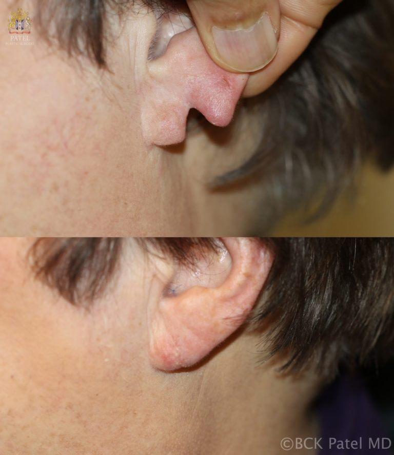 englishsurgeon.com Split earlobe repair by Dr. BCK Patel MD, FRCS, Salt Lake City, St. George