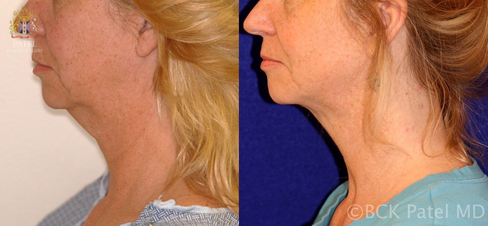 englishsurgeon.com Results of Vaser neck liposuction in Salt Lake City by Dr. BCK Patel MD, FRCS and St. George