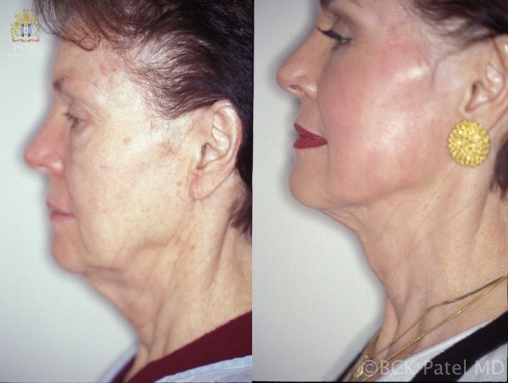 englishsurgeon.com A more limited improvement in the neck with limited incisions behind the ear and the use of a Giampappa Suture