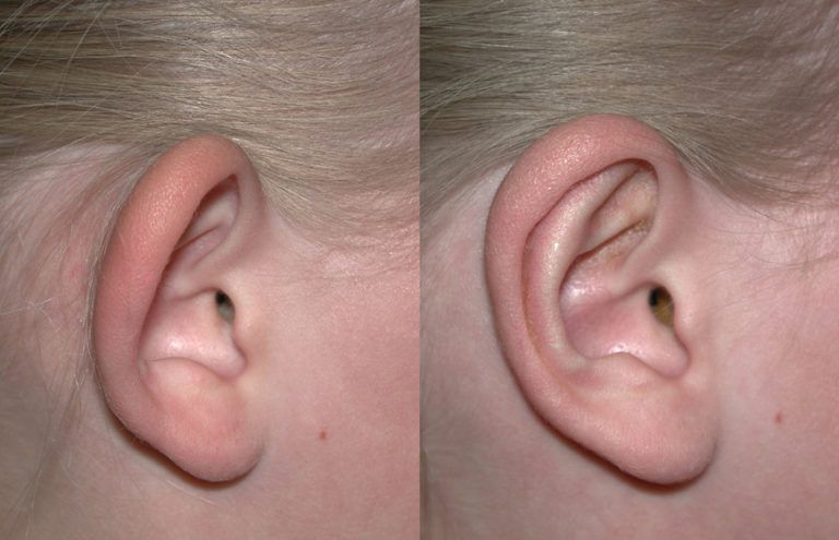 englishsurgeon.com Photos show how otoplasty (bat-ear surgery) may be performed to improve the appearance of the ears. BCK Patel MD, FRCS, Salt Lake City, Utah, St. George