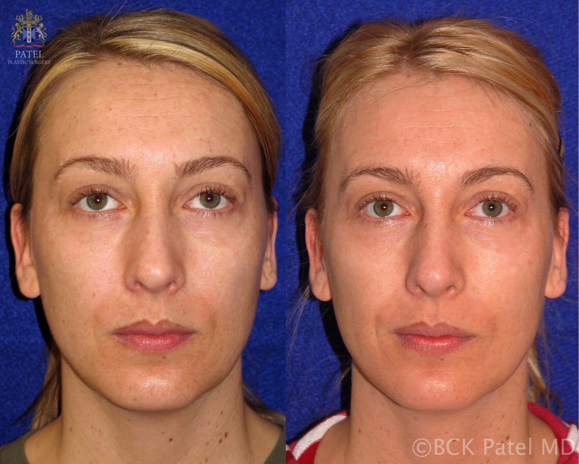 englishsurgeon.com. Results fo full face trichloroacetic acid chemical peels by Dr BCK Patel MD, FRCS, Salt Lake City, Utah, St George, London