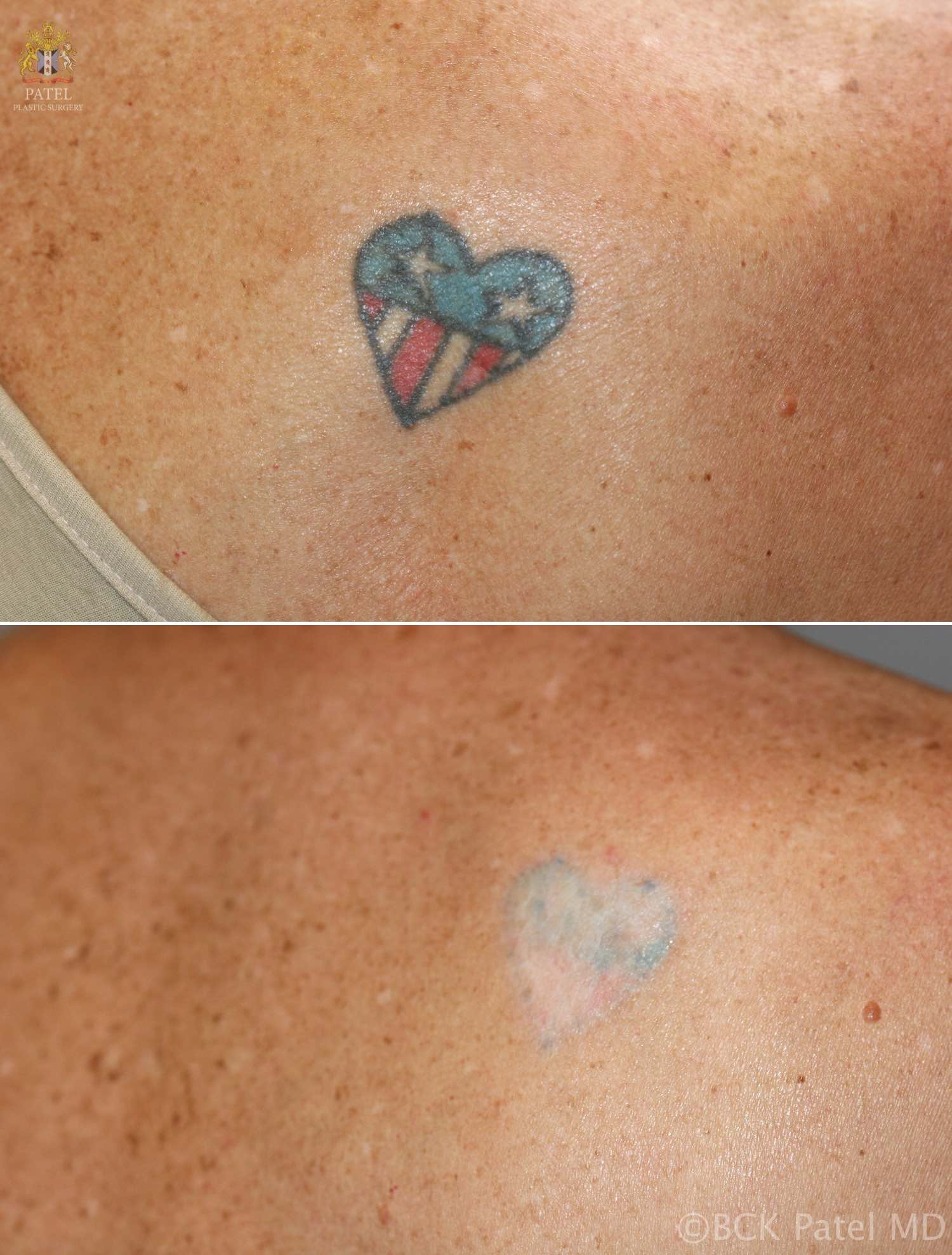 efficient removal of unwanted tattoos using advanced lasers