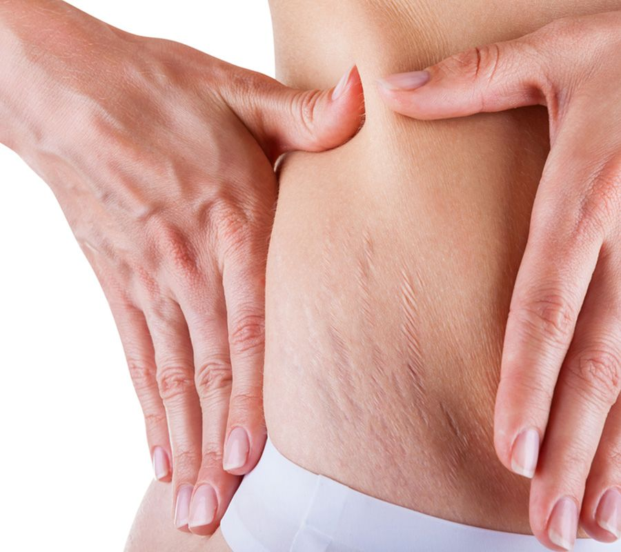 Stretch mark treatment. Bhupendra C K Patel MD, FRCS; englishsurgeon.com. BCK Patel MD, Patel Plastic Surgery.