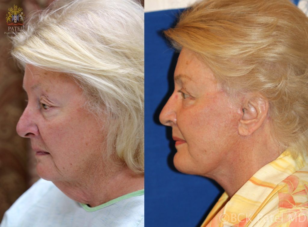 englishsurgeon.com. Photos show results of a facelift and necklift in a female with a tight jawline and neck. BCK Patel MD, FRCS; Salt Lake City, Utah