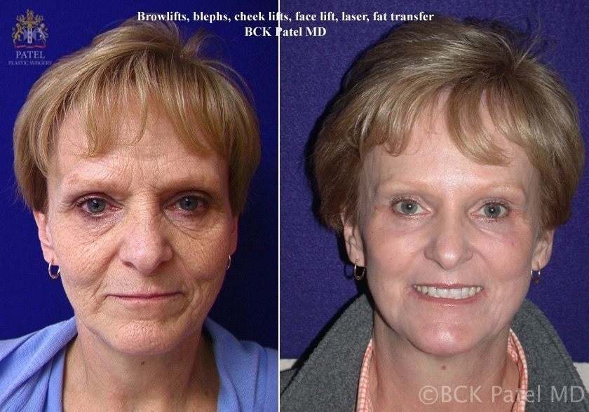 englishsurgeon.com. Photos show results of fractionated CO2 laser to face, browlifts, upper and lower blepharoplasty and fat grafts