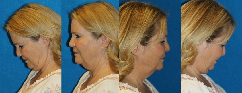 englishsurgeon.com. Photos show how to take photos of your face with looking straight ahead, sideways and with the chin down. Sequence of photographs demonstrated in this series.