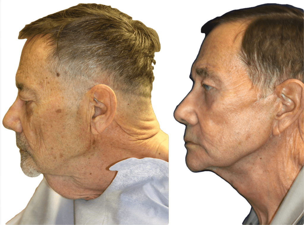 Photos show the results of performing a facelift and necklift in a man after massive weight loss. BCK Patel MD, FRCS