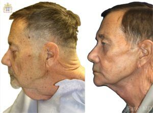 englishsurgeon.com. Before and after photographs of a male facelift and necklift