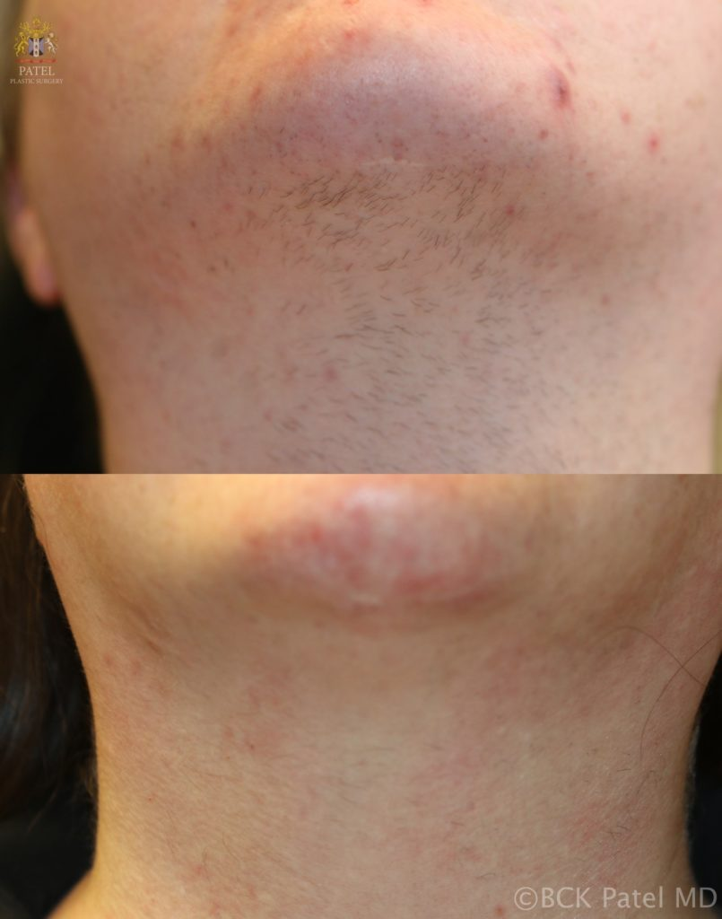 Laser hair removal from the chin and neck of a female By BCK Patel MD, FRCS, Salt Lake City, St. George