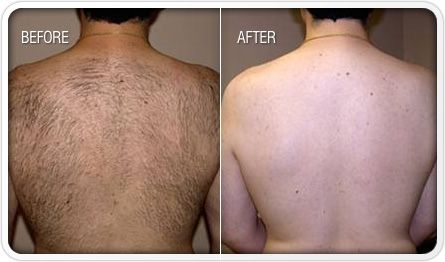Laser hair removal back of a man. Bhupendra C K Patel MD, FRCS; englishsurgeon.com. BCK Patel MD, Patel Plastic Surgery.