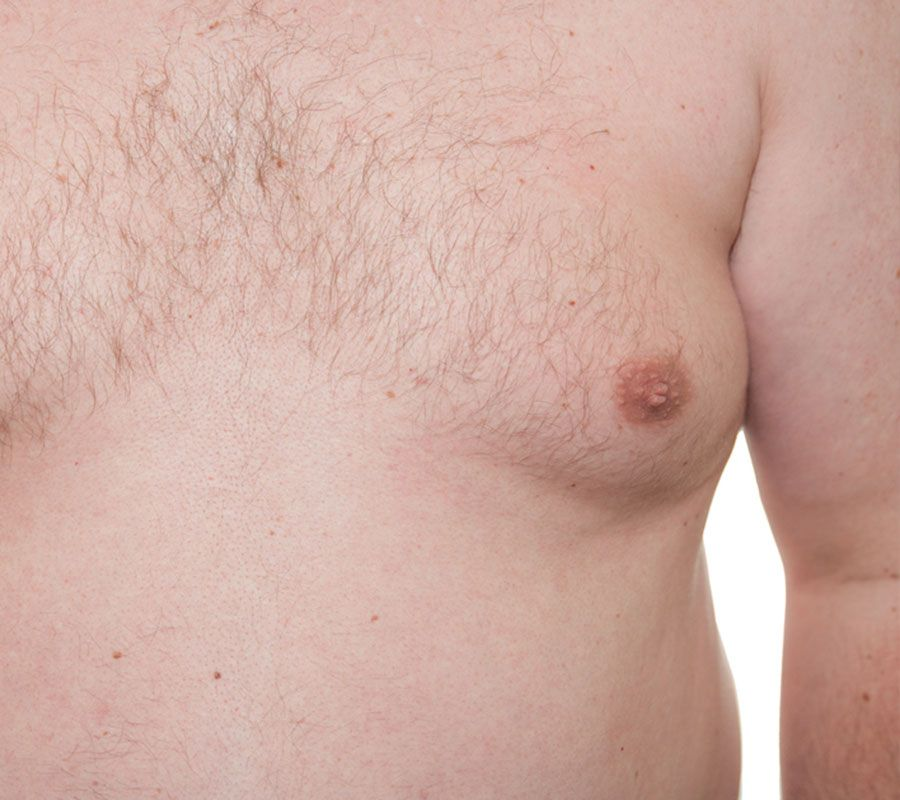 Gynecomastia treatment. Bhupendra C K Patel MD, FRCS; englishsurgeon.com. BCK Patel MD, Patel Plastic Surgery.