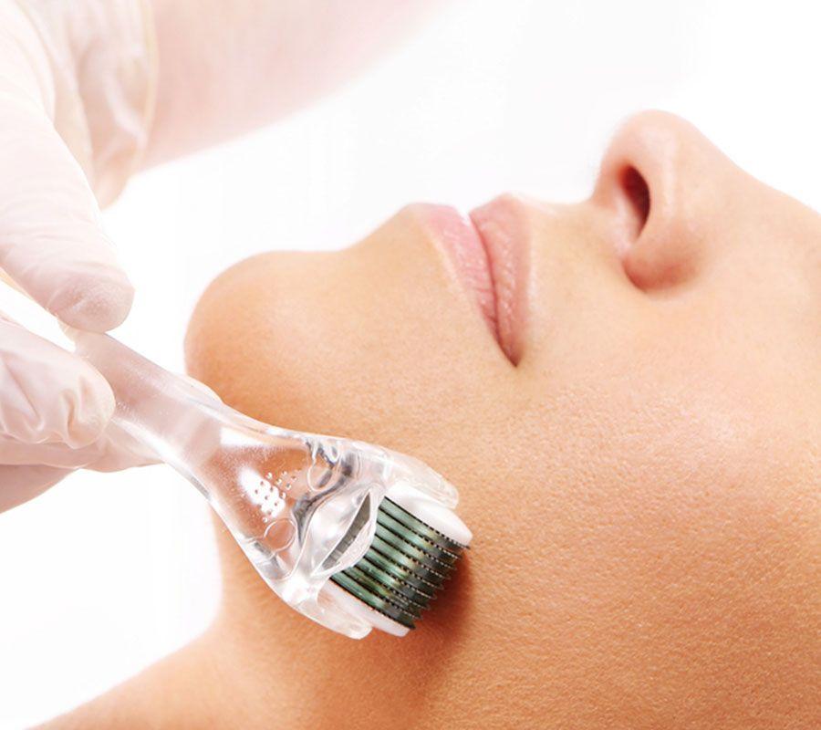 Microneedling face. Bhupendra C K Patel MD, FRCS; englishsurgeon.com. BCK Patel MD, Patel Plastic Surgery.