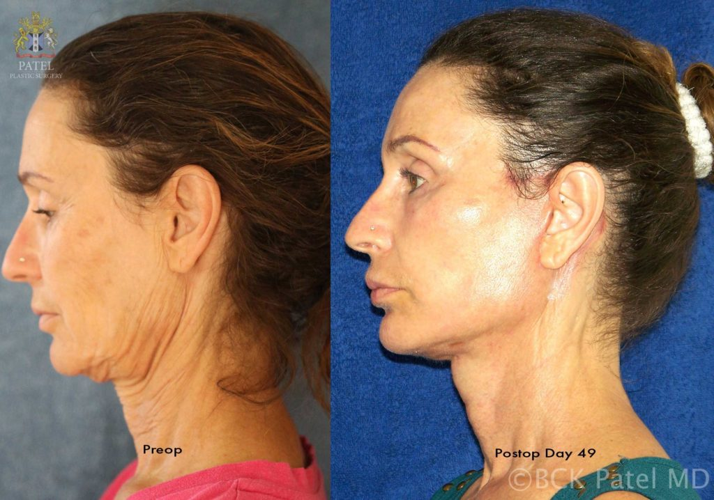 Results of a facelift and necklift 49 days after surgery performed by Dr. Bhupendra Patel of Salt Lake City, Saint George and London, England