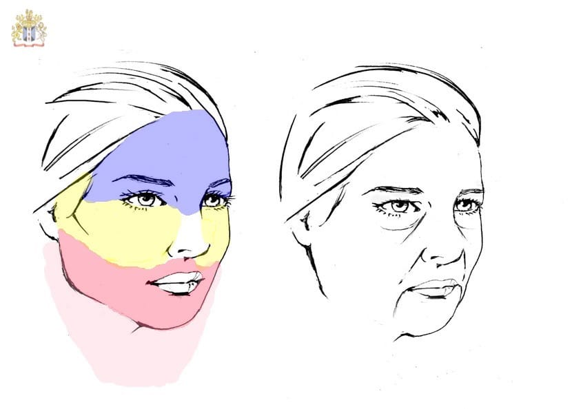 Facial aging changes that affect the forehead, the brows, the upper and lower eyelids, cheeks, lower face, jawline, jowls and neck that may benefit from a staged repair of the upper two-third of the face and a lower facelift and necklift by Dr. Bhupendra C.K. Patel MD of Salt Lake City, Saint George and London, England.