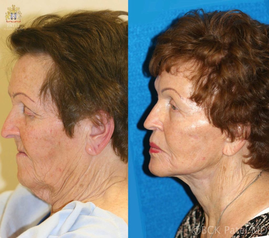 Dr. Bhupendra Patel Md of Salt Lake City, Saint George and London, England performs a facelift and necklift with fat grafts in Salt Lake City, Saint George and London, England